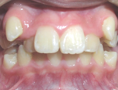 Non-extraction treatment for a patient with crowding and excessive overjet and overbite
