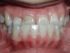 Non-extraction treatment for a patient with an anterior crossbite